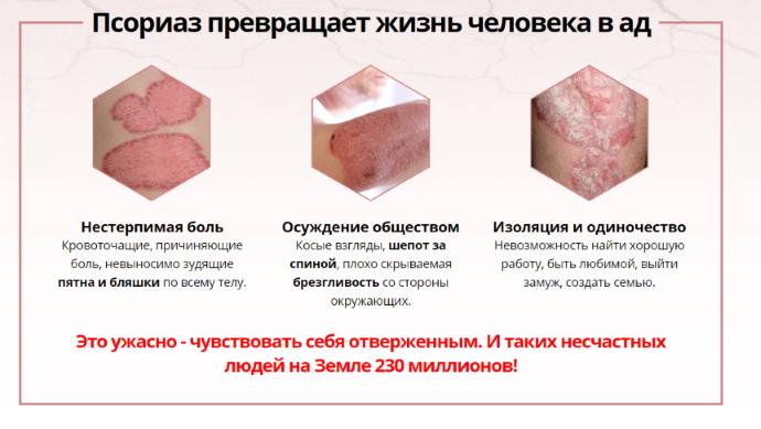 лечение псориаза томск