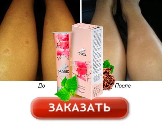 средство от псориаза Буденновск